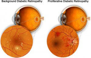Diabetic Retinopathy: nonproliferative and proliferative